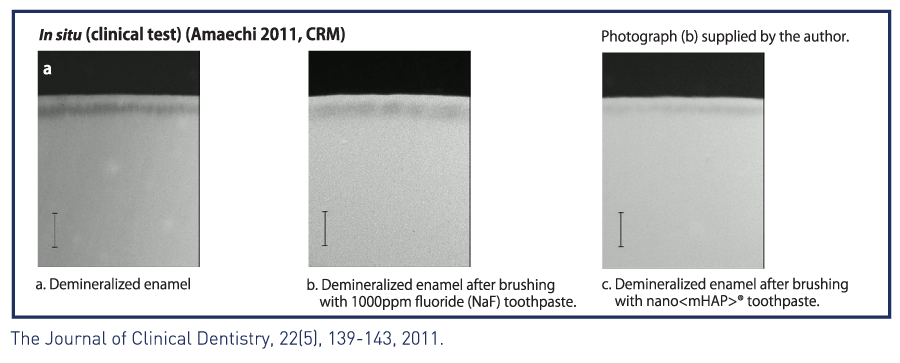 pictures showing difference between demineralized tooth and remineralized with nano mhap